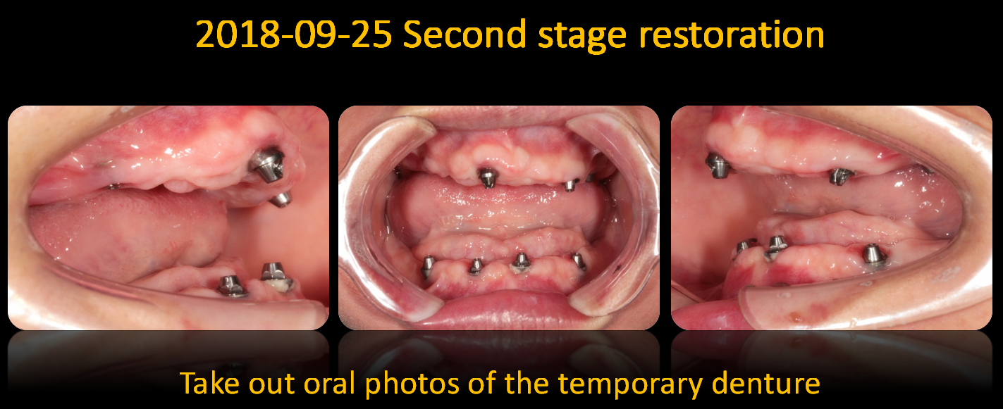 Take_out_oral_photos_of_the_temporary_denture