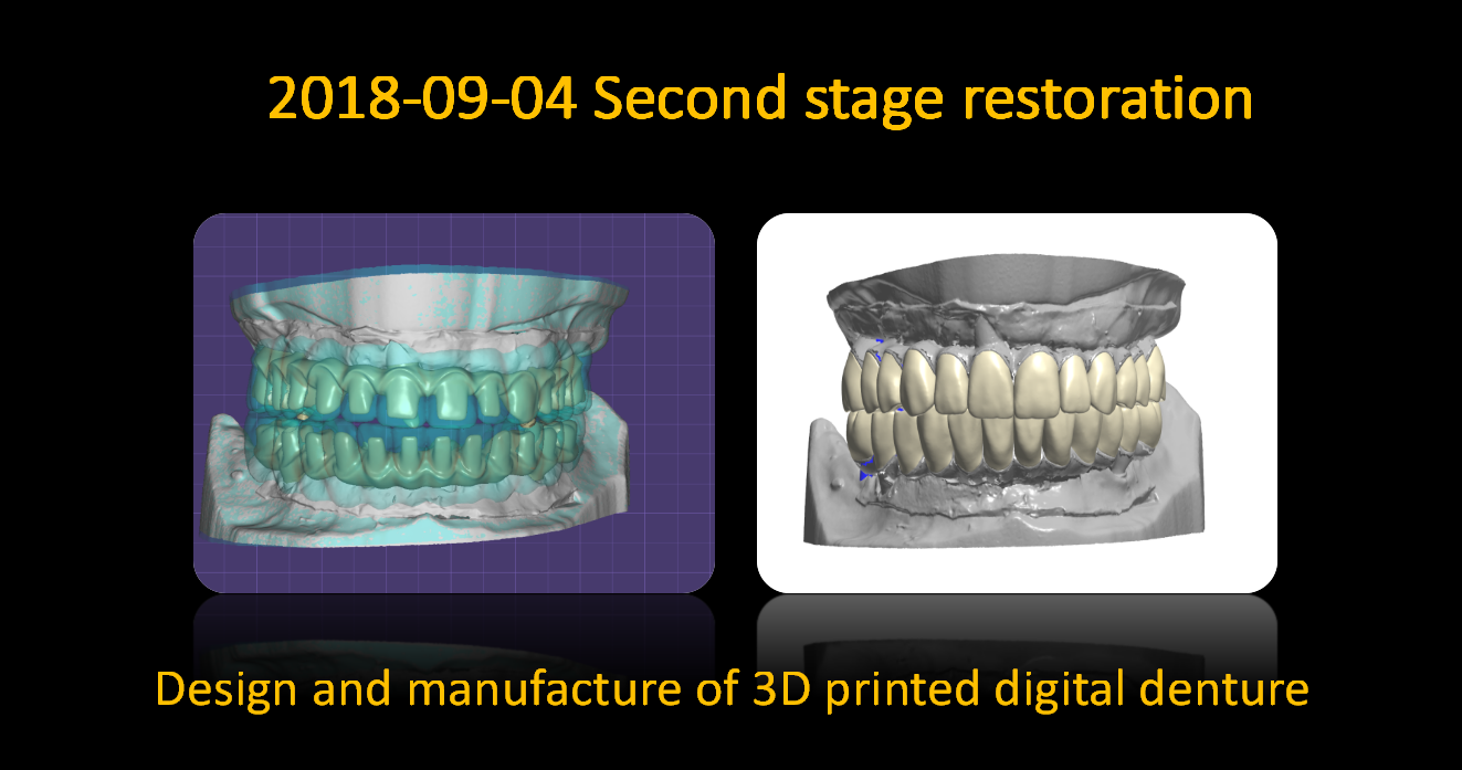 Design_and_manufacture_of_3D_printed_digital_denture_2