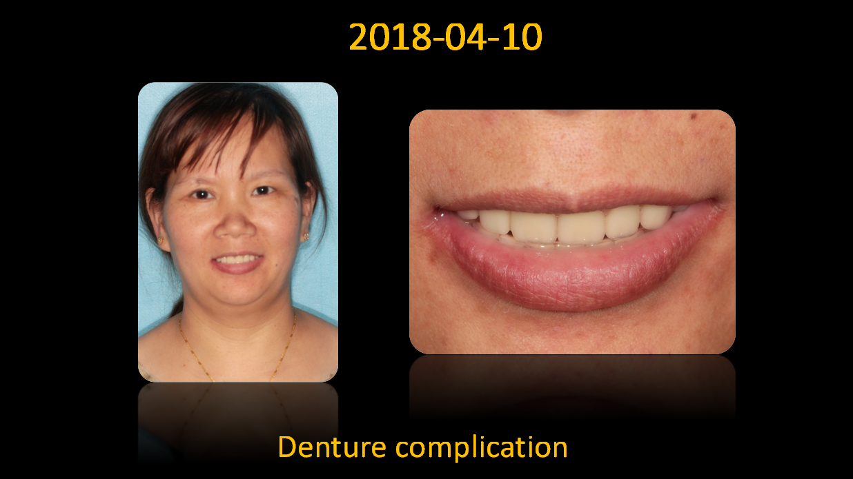 Denture_complication