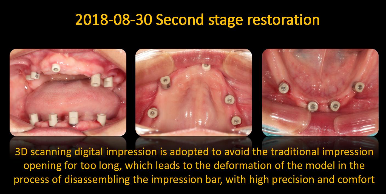 3D_scanning_digital_impression
