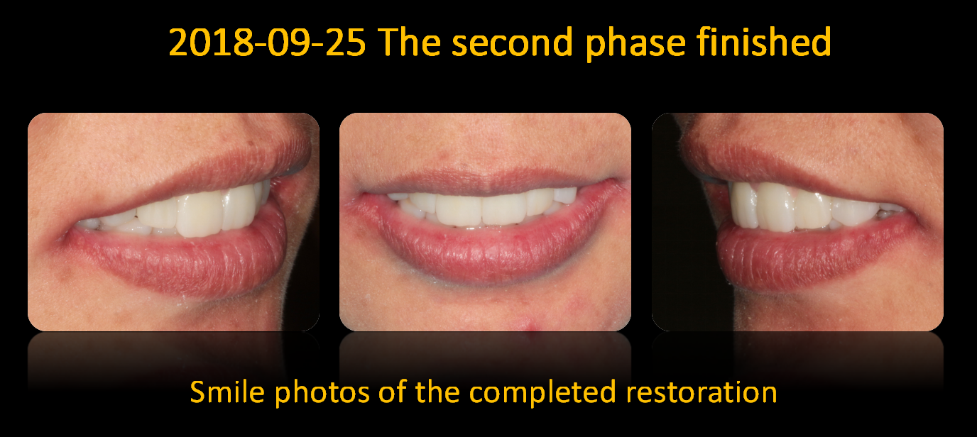 Smile_photos_of_the_completed_restoration