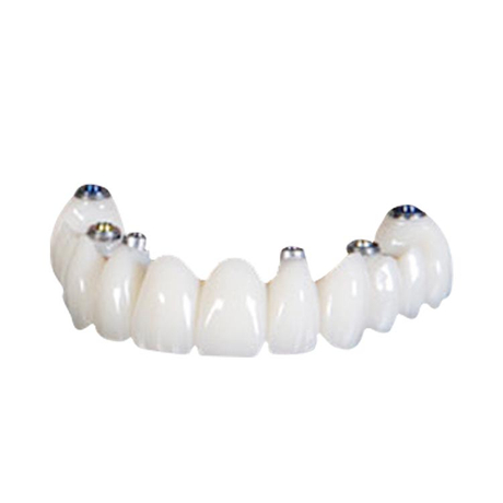 Screw-retained Implant