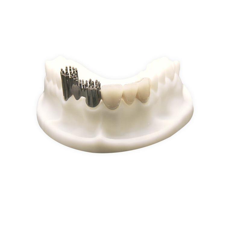Porcelain-Fused-to-Metal (PFM) Crowns   Dental Lab ...