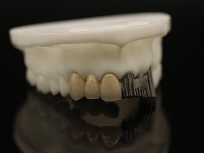 Porcelain-Fused-to-Metal (PFM) Crowns | Dental Lab ...