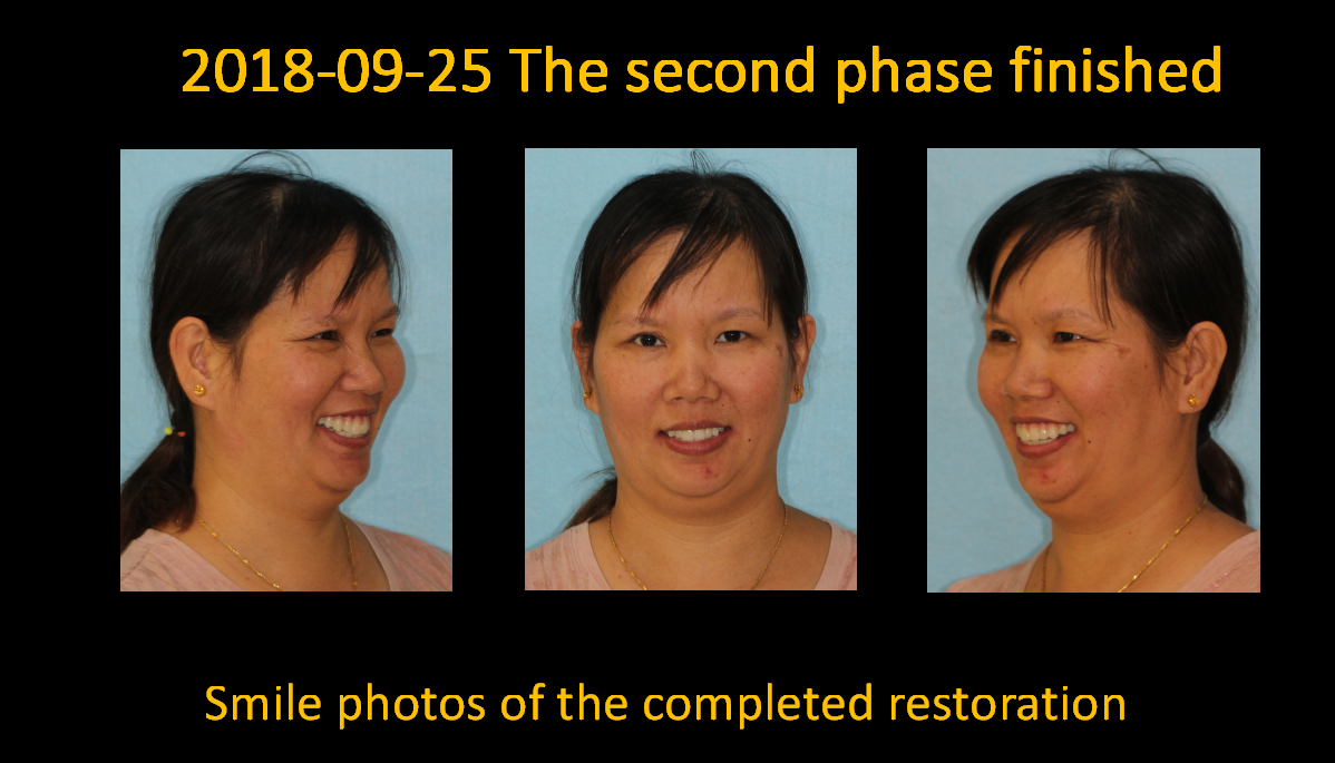 Smile_photos_of_the_completed_restoration_1